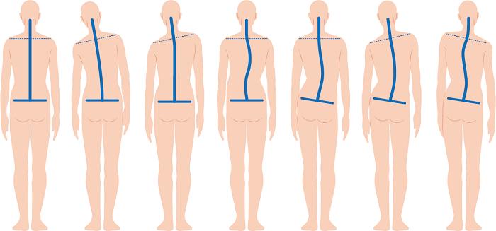 姿勢の悪さが骨盤が歪む原因の一つ